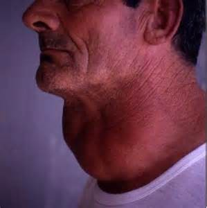 Swollen Thyroid